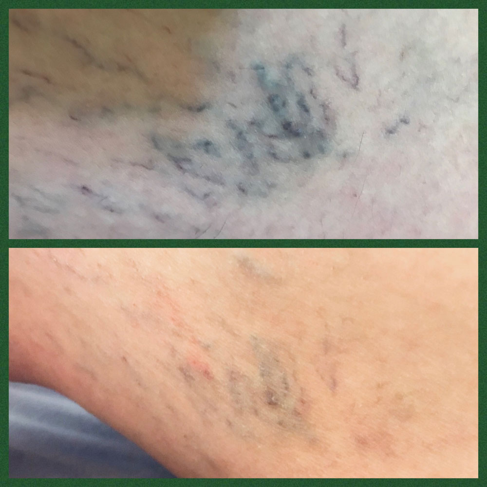 Sclerotherapy Southend-on-Sea