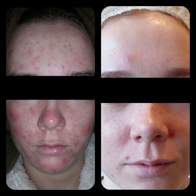 Acne treatment Southend-on-Sea