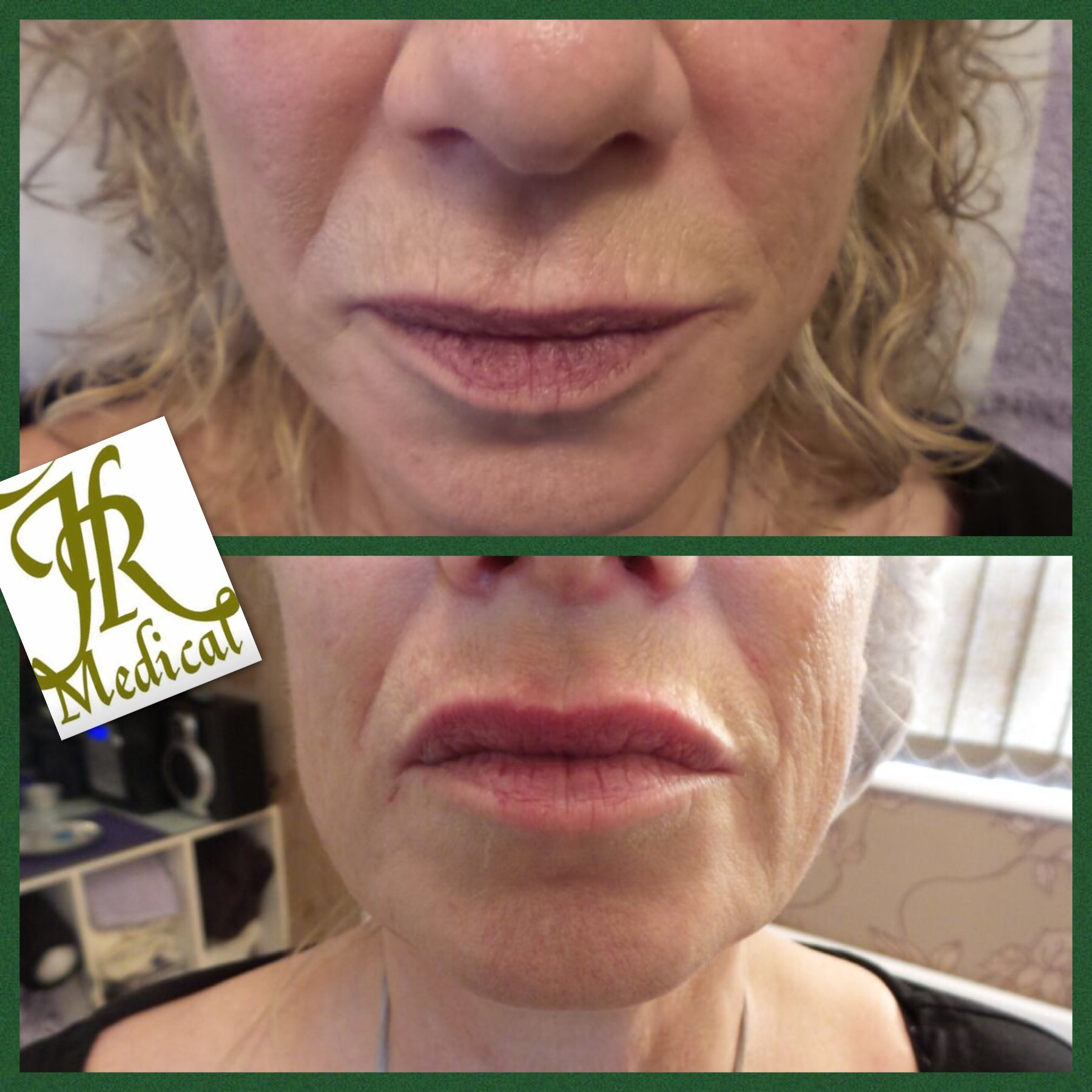 Lip fillers Southend-on-Sea