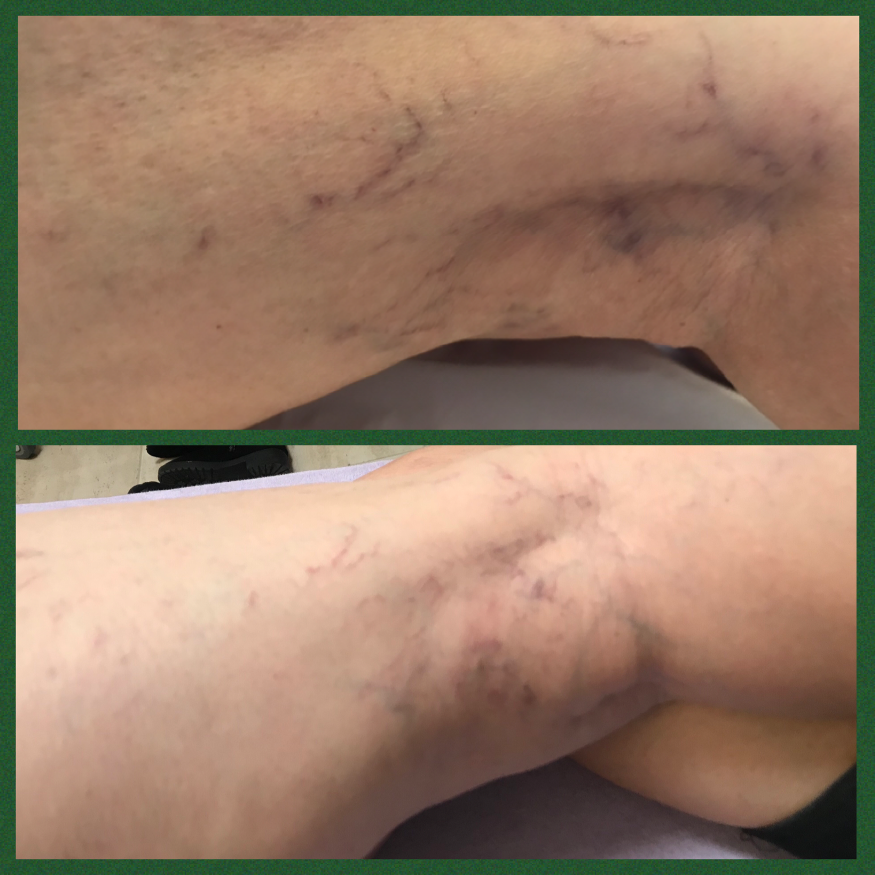 Sclerotherapy Essex Vein Removal